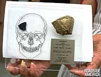 Skull chip from one of the victims